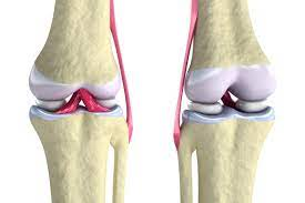 3D Printed Knee Replacement